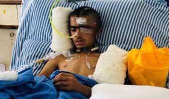 ভারতীয় বাহিনীর হামলায় কাশ্মীরে আহত অনেকের মৃত্যু